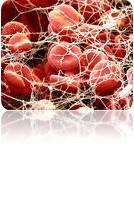 دانلود پاورپوینت سرطان خون